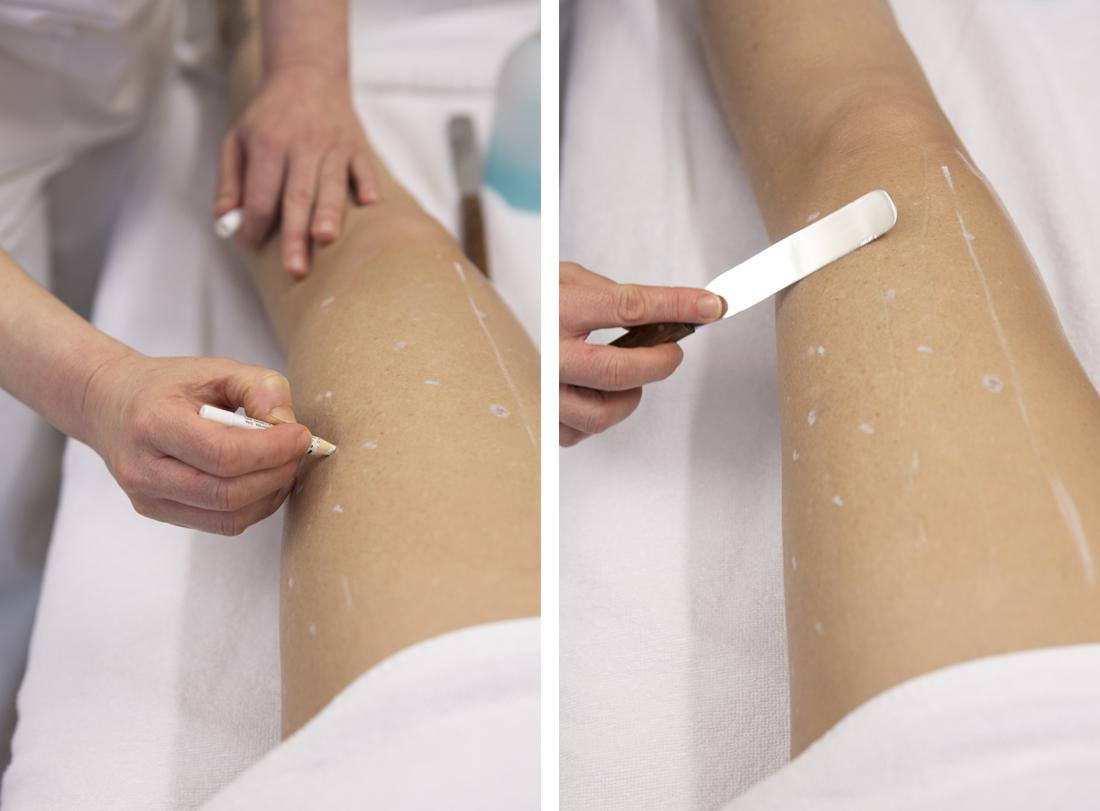 Epilazione Laser a diodo-SandraBacci-cavia contenta- centro medico martini